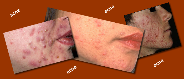 Paleo Diet and Acne